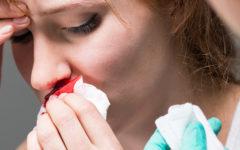 Krew z nosa w ciąży